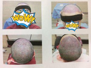 台北植髮-手術後