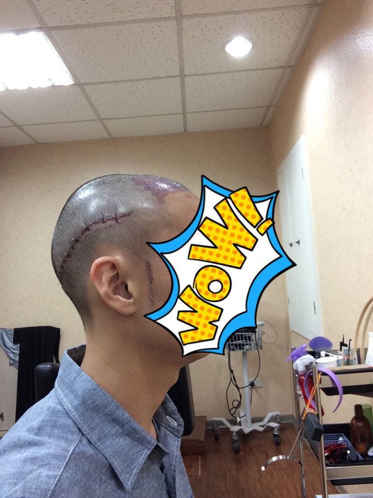 台北植髮-手術後覆診