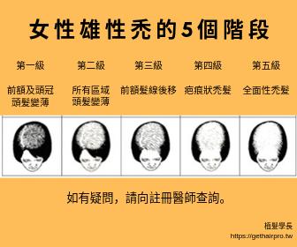 女性雄性禿的5個階段