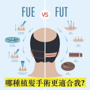 FUE vs FUT 哪種植髮手術更適合我?