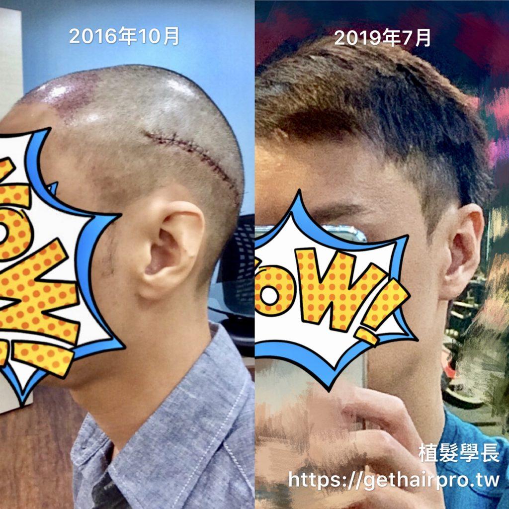 植髮手術後2年9個月:頭側疤痕不見了