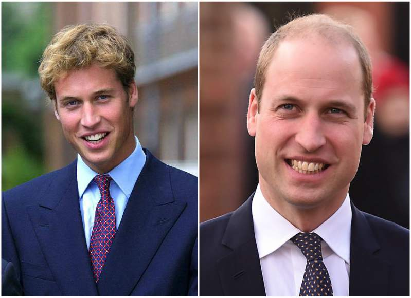 Prince William hair, young vs now