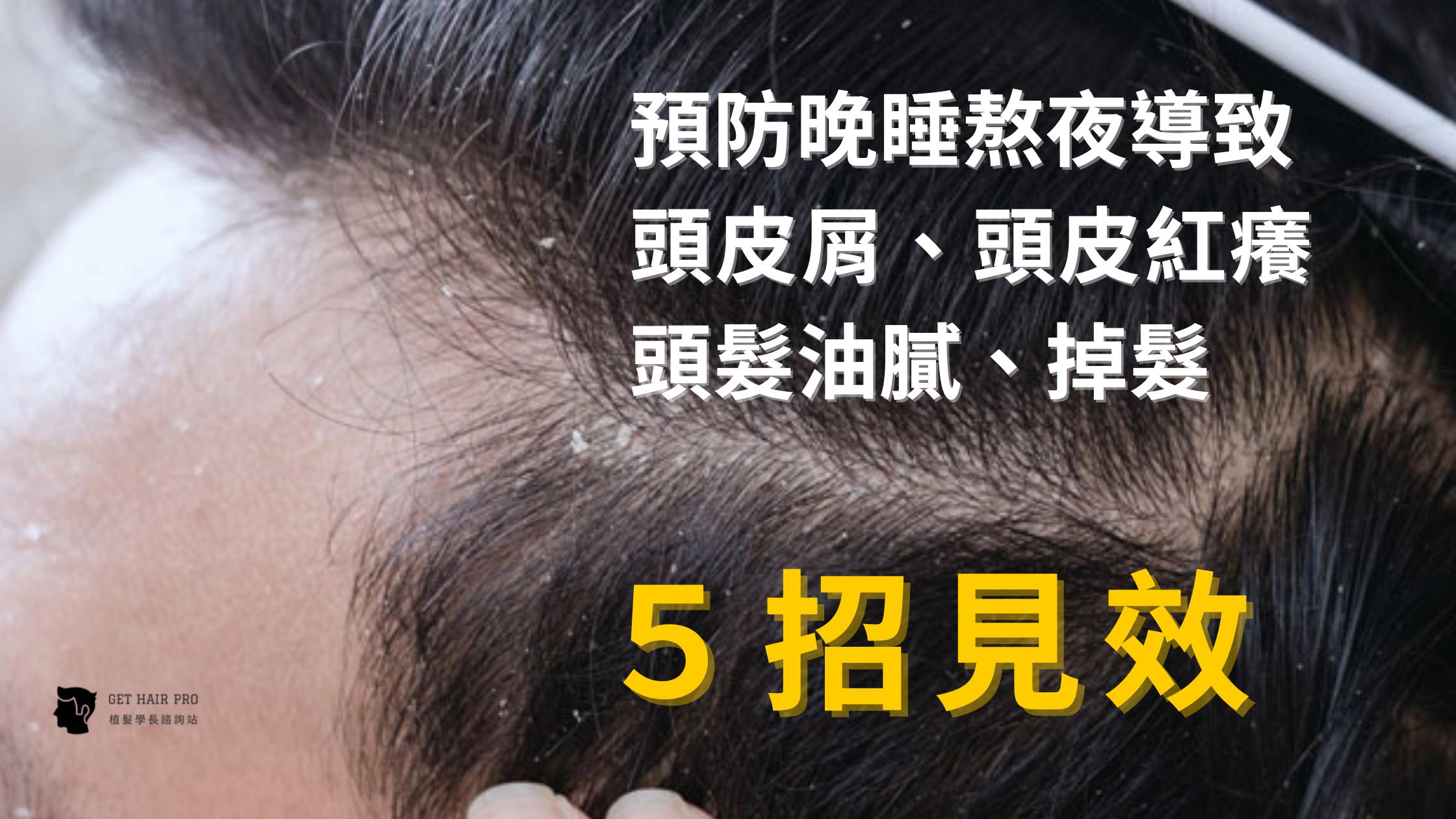 預防晚睡熬夜導致 頭皮屑、頭皮紅癢頭髮油膩、掉髮,5招見效